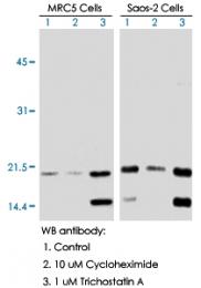 MAB0018 - TP53 / p53