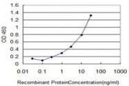 MAB0030-M01 - Glycohemoglobin / HBA1c