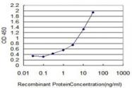 MAB0030-M06 - Glycohemoglobin / HBA1c