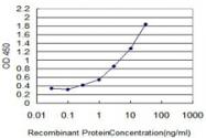 MAB0030-M07 - Glycohemoglobin / HBA1c