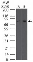 MAB0053 - TBK1