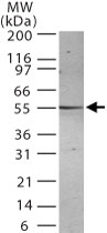 MAB0101 - Presenilin-2