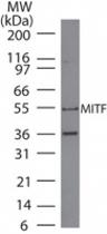 MAB0103 - MITF