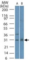 MAB0106 - Bax inhibitor 1