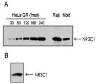 MAB0119 - Glucocorticoid receptor