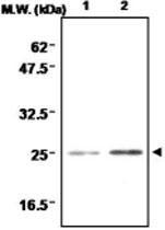 MAB0692 - Superoxide dismutase 2 / SOD2