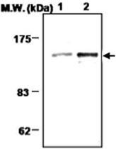 MAB0699 - Amphiphysin