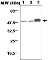 MAB0709 - Neuron specific enolase