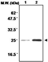 MAB0710 - Superoxide dismutase 2 / SOD2