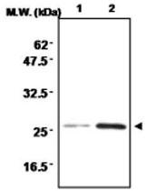 MAB0711 - Superoxide dismutase 2 / SOD2