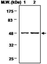 MAB0719 - Neuron specific enolase