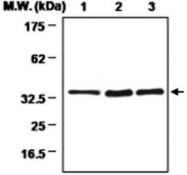 MAB0722 - SULT1A3/1A4
