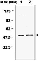 MAB0734 - Glutamine synthetase