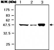 MAB0736 - Neuron specific enolase