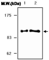 MAB0756 - SERPING1 / C1 Inhibitor