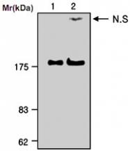 MAB0757 - Alpha-2-macroglobulin / A2M