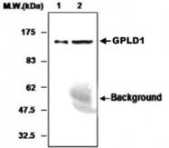 MAB0774 - GPLD1 / GPI-PLD