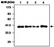 MAB0776 - Haptoglobin