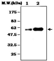 MAB0785 - Alpha-1-antitrypsin