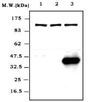 MAB0812 - Tumor necrosis factor (TNF-alpha)