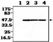 MAB0825 - CKBB
