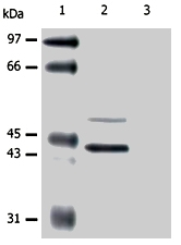 MAB0853 - Cytokeratin 5