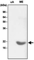 MAB1075 - Alpha-crystallin B chain / CRYA2