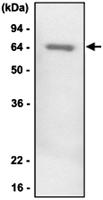 MAB1077 - SERPINF1 / PEDF
