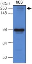 MAB1085 - Endoplasmin / HSP90B1 / TRA1