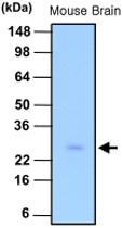 MAB1093 - Phosphoserine phosphatase