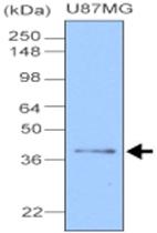 MAB1098 - Apolipoprotein J / Apo J