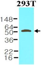 MAB1122 - Visfatin / NAMPT