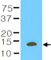 MAB1127 - Cystatin-B