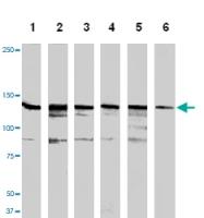 MAB1143 - HGF receptor