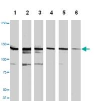 MAB1145 - HGF receptor