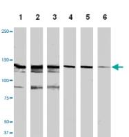 MAB1147 - HGF receptor