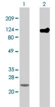 MAB1274 - 6xHistidine Epitope Tag