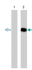 MAB1368 - Dystroglycan
