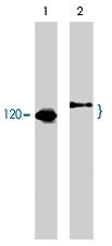 MAB1378 - CBL / RNF55