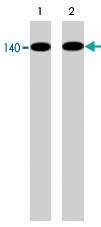 MAB1390 - NOS3