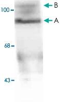 MAB1785 - Progesterone receptor