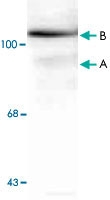 MAB1786 - Progesterone receptor