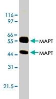 MAB1832 - MAPT / TAU