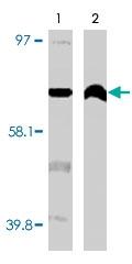 MAB1861 - CYP4F11