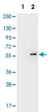 MAB1919 - AKT1 / PKB
