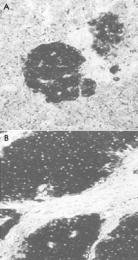 MAB1963 - Neuron specific enolase
