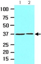 MAB2052 - Laforin