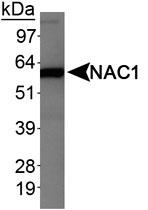 MAB2333 - NACC1 / BTBD14B