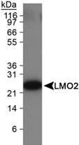 MAB2336 - Rhombotin-2