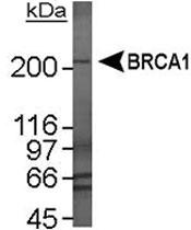 MAB2362 - BRCA1 / RNF53
